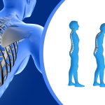 Osteoporosis Explained and Avoidance Explored