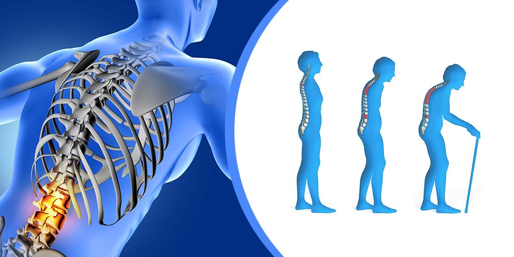 Osteoporosis Avoidance