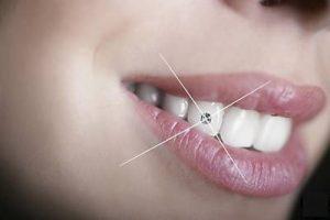 dental operation